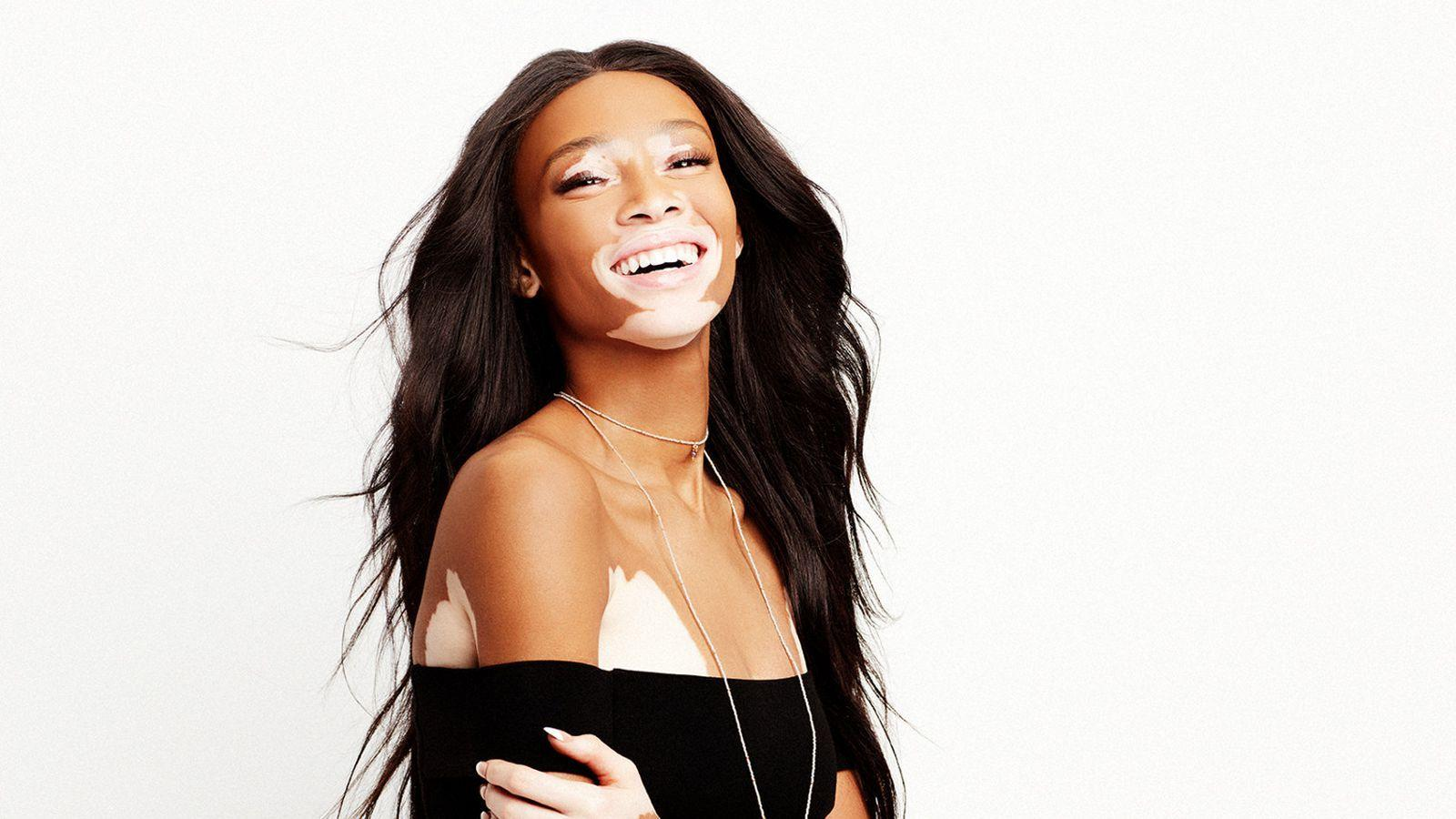 Why Model Winnie Harlow Hates Trying on Clothes - Racked