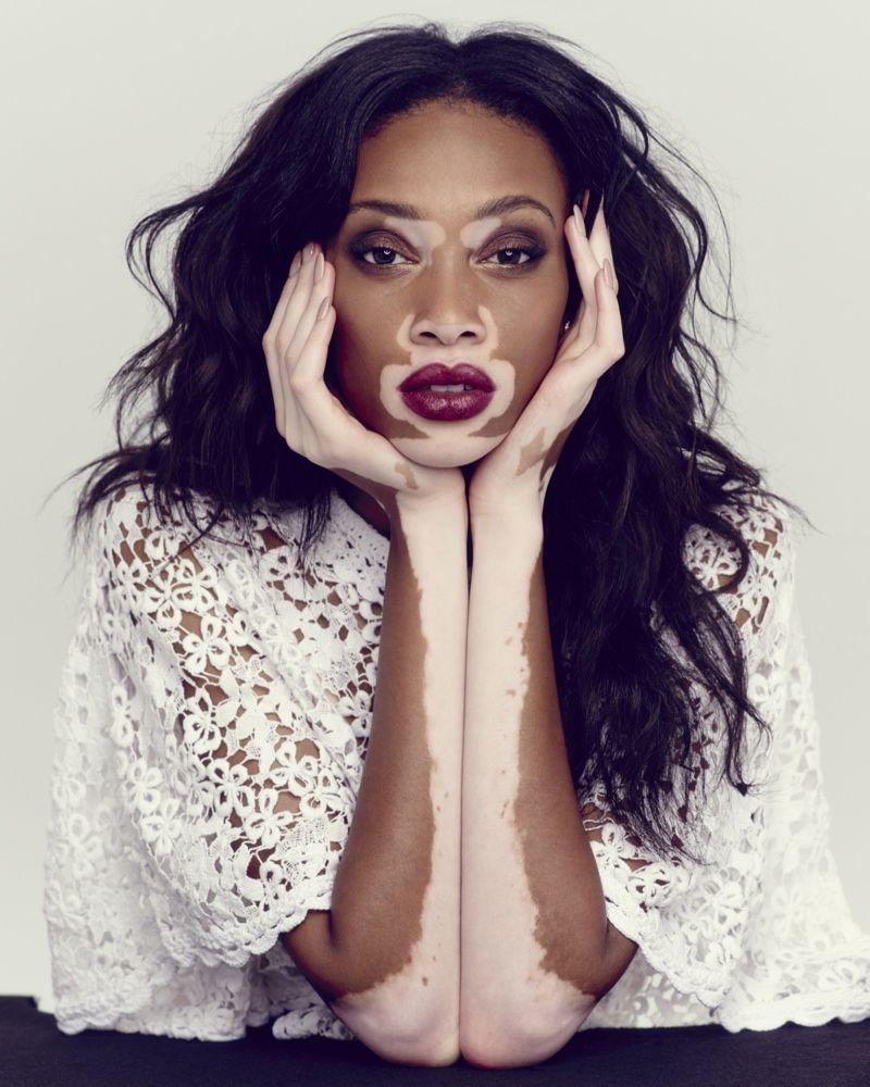 Winnie Harlow Photos: Her Campaigns for Desigual & Diesel