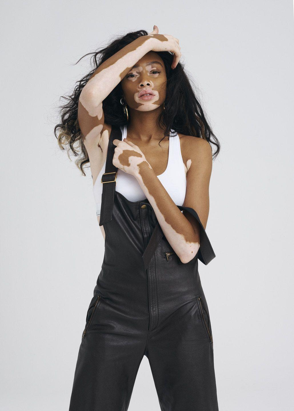 Winnie Harlow in Grazia UK Nov 28th, 2016 by Mark Rabadan