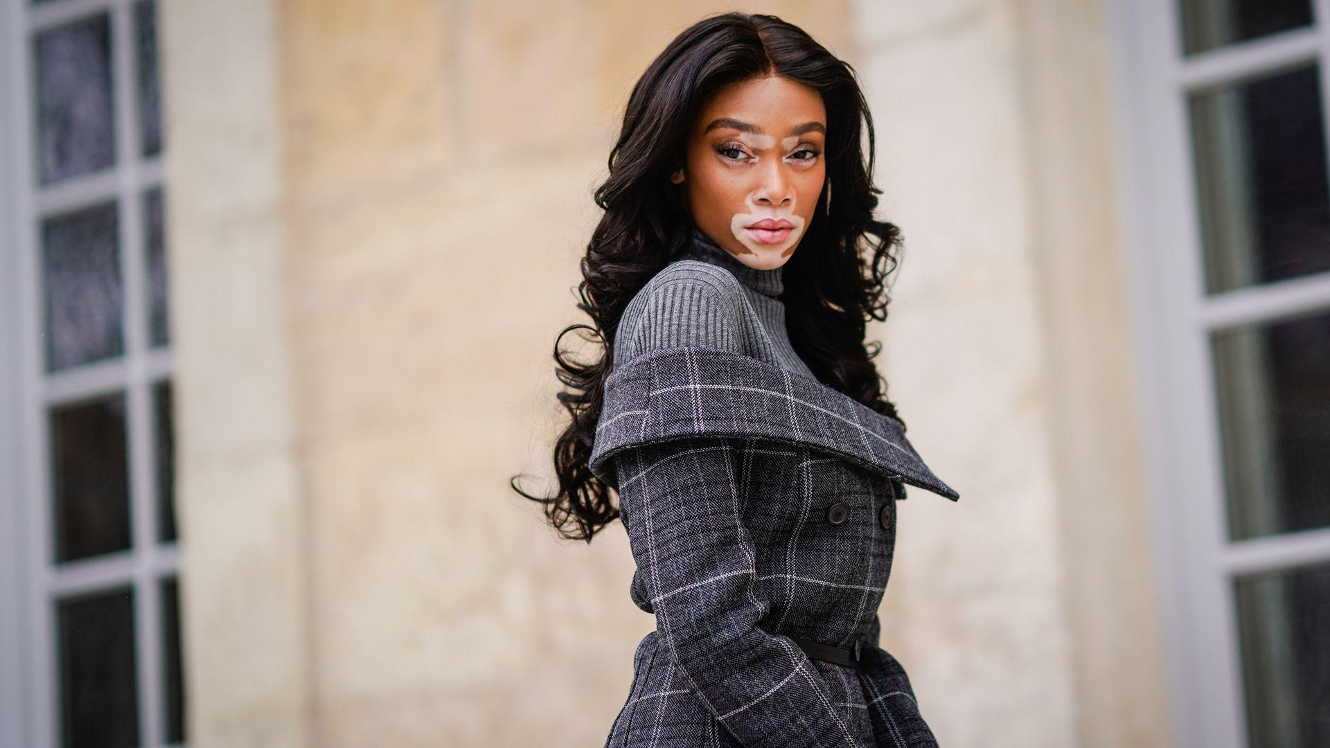 Winnie Harlow Slams Magazine for Vitiligo Comment | StyleCaster