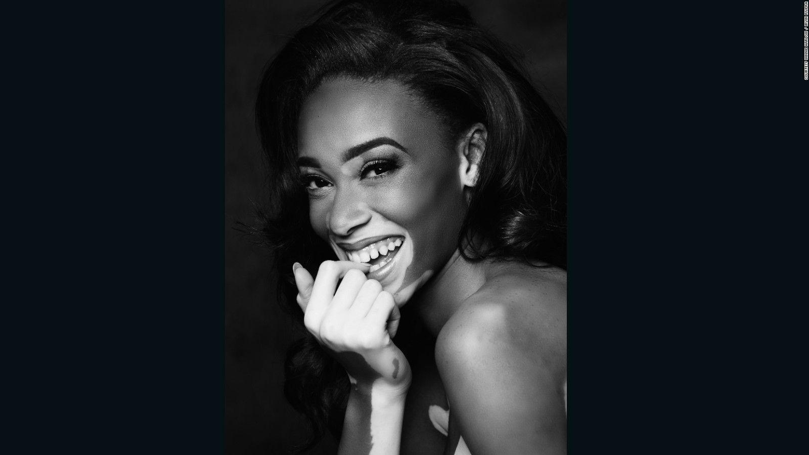 Winnie Harlow's changing the face of fashion - CNN Style