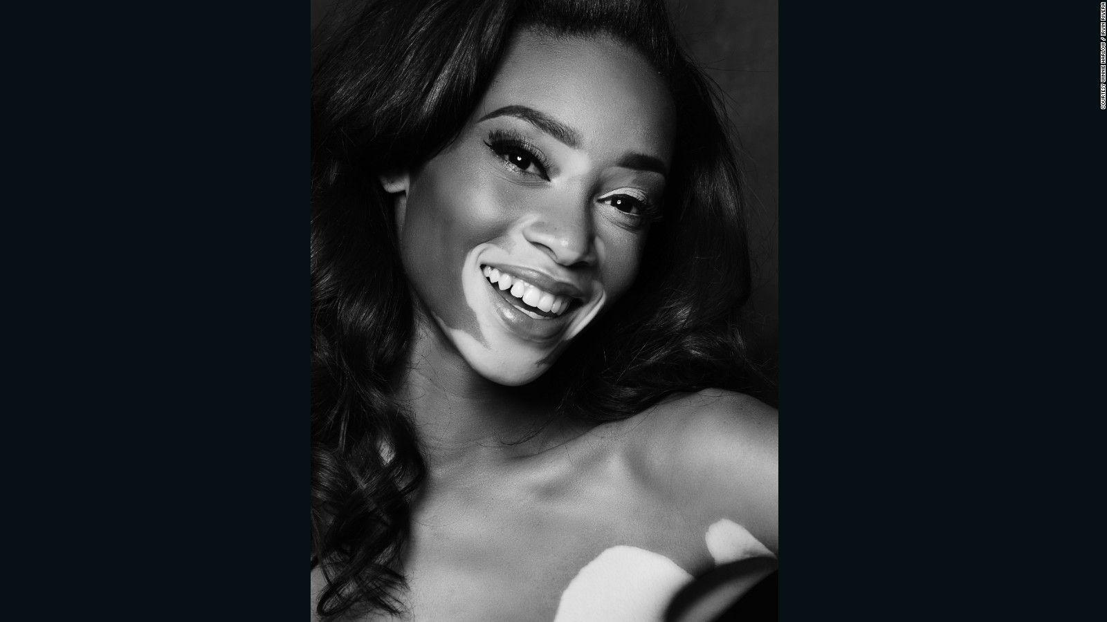 Model Winnie Harlow is changing the face of fashion Style
