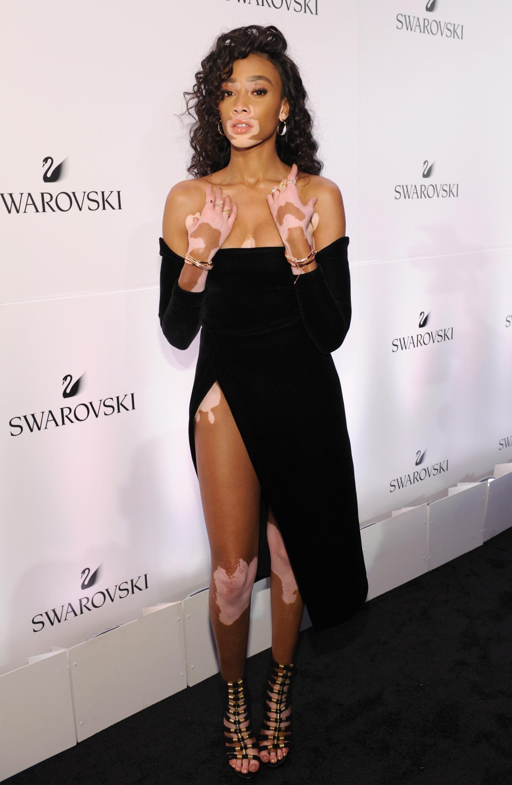 Winnie Harlow - News & Photos | WVPhotos