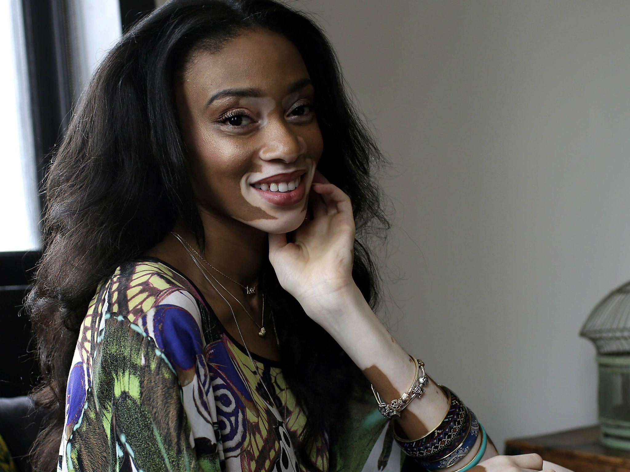 Winnie Harlow: Everything you need to know about the star of ...