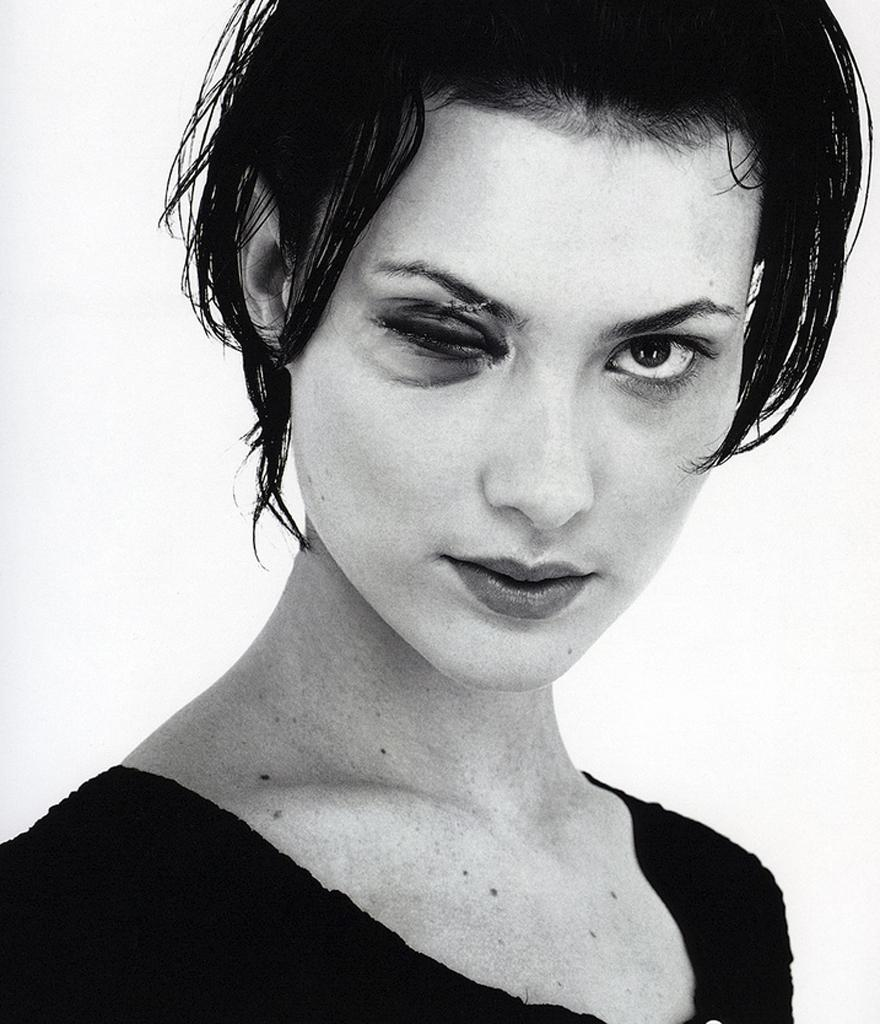 Shalom-Harlow-Black-Eye | Toronto Fox