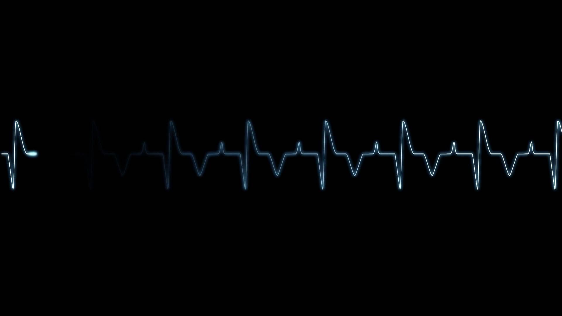 селе картинки ритм сердца на черном фоне шутку
